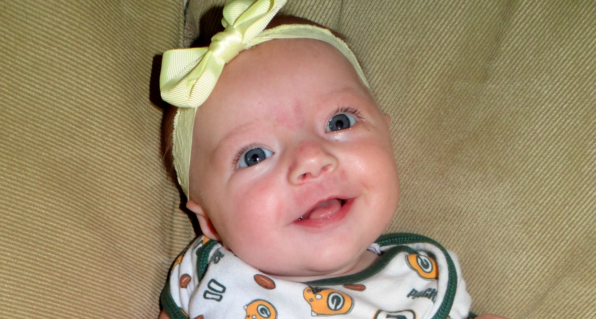 Just fixing my melon the story of elizabeth and her torticollis plagiocephaly and doc band